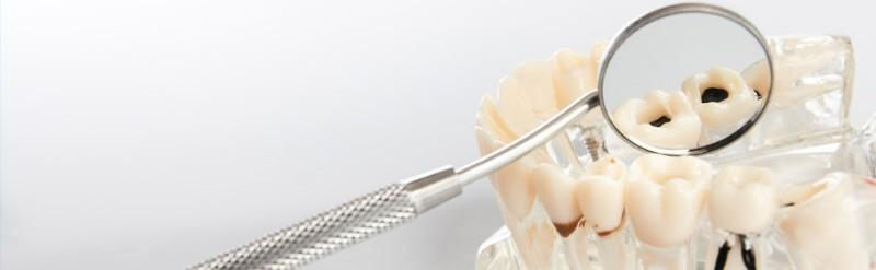 extraction dents sagesse Anderlecht
